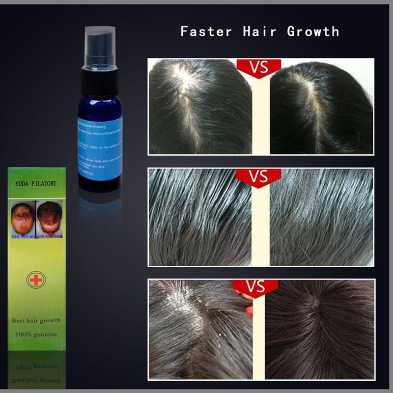 2016 Hair Growth Liquid Spray Product 30ml Yuda Alopecia Pilatory Extra Strength Anti Hair Loss Of Hair Regrowth Treatment Serum(China (Mainland))