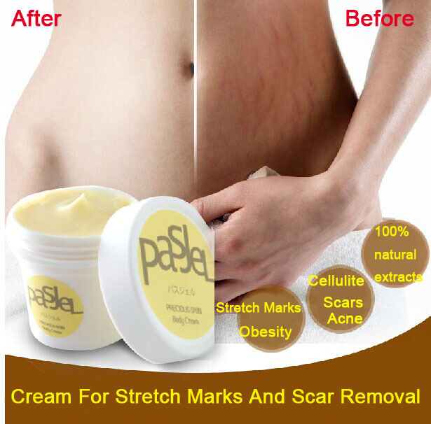 Cream For Stretch Marks And Scar Removal Powerful To Stretch Marks Maternity Skin Body Repair Cream Remove Scar Care Postpartum<br><br>Aliexpress