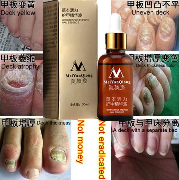 Original MeiYanQiong Fungal Nail Treatment Essence Nail and Foot Whitening Toe Nail Fungus,Profession Removal Care Nail Gel