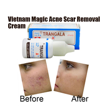 2pcs Vietnam Magic Acne Scar Removal Cream Rapid Remove Acne Face Spots Essential Oil Pimple scar Treatment anti-fungus(China (Mainland))