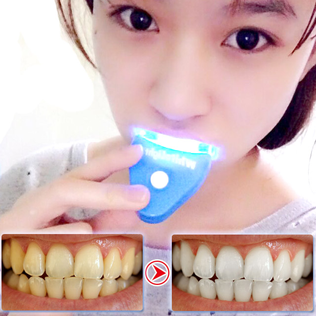 Dental Accelerator LED Tooth Whitening Light Mini LED Teeth Whitening Lamp Teeth Bleaching Laser Machine Cosmetic System