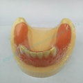 Free Shipping Implant practice model with gum dental tooth teeth dentist anatomical anatomy model odontologia