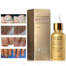 Gray Nail Treatment Gray Nail Repair Oil Liquid Onychomycosis Remove Gray Nail Repair Polish Hand Care Recover Essential Oil(China (Mainland))