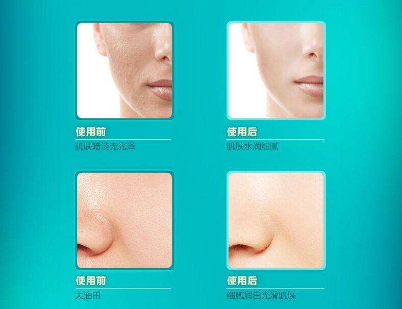 Acid Hyaluronic For Face Hyaluronic Acid