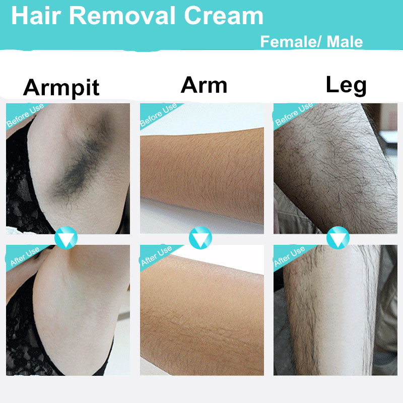 Epilatori per la rimozione dei capelli recensioni su Hand