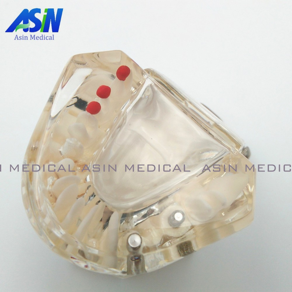 651bb01d932 High Quality NEW arrival Dental implant Demonstration Bracket Simulation  Caries Teeth Model teeth removable Dentist - us826