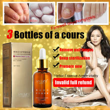 100 Original SnazII Fungal Nail Treatment Essence Nail and Foot Whitening Toe Nail Fungus ProfessionRemoval Feet
