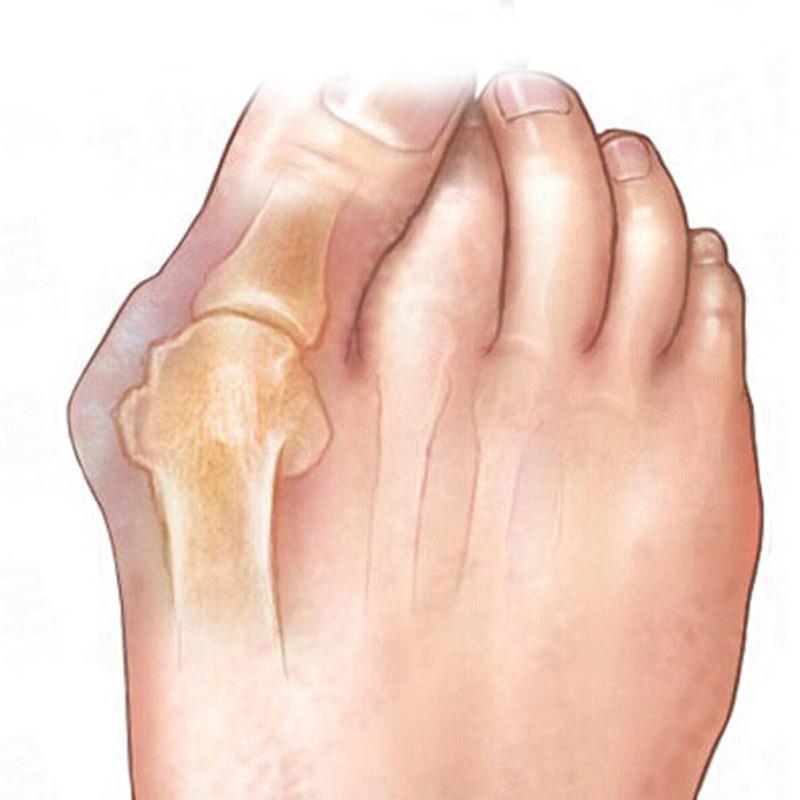Foot Massage Sub-toe Toe Separator Orthoses Beauty Silicone Toe Foot Massage Care Thumb Orthopedic Braces To Correct Massage(China (Mainland))