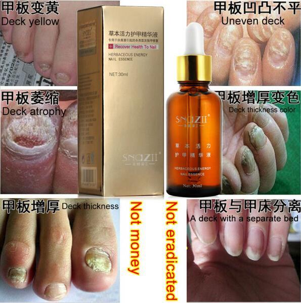 100% SnazII Fungal Nail Treatment Essence Nail and Foot Whitening Toe Nail Fungus, Profession Removal Feet Care Nail Gel(China (Mainland))