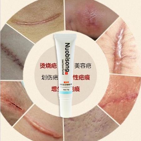 Nuobisong lanbena rosto de cuidados Acne tratamento de manchas de cuidados da pele oleosa Acne remoção creme cicatriz marca trecho rosto maquiagem