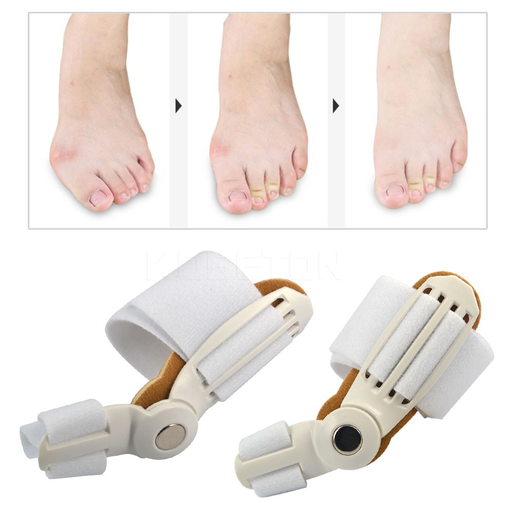 Dedão do pé Joanete Tala Alisador de Dispositivo Correção Toe Foot Pain Relief Hallux Valgus Pro Chaves Polegar Ortopédicos Cuidados Diários 1 pc