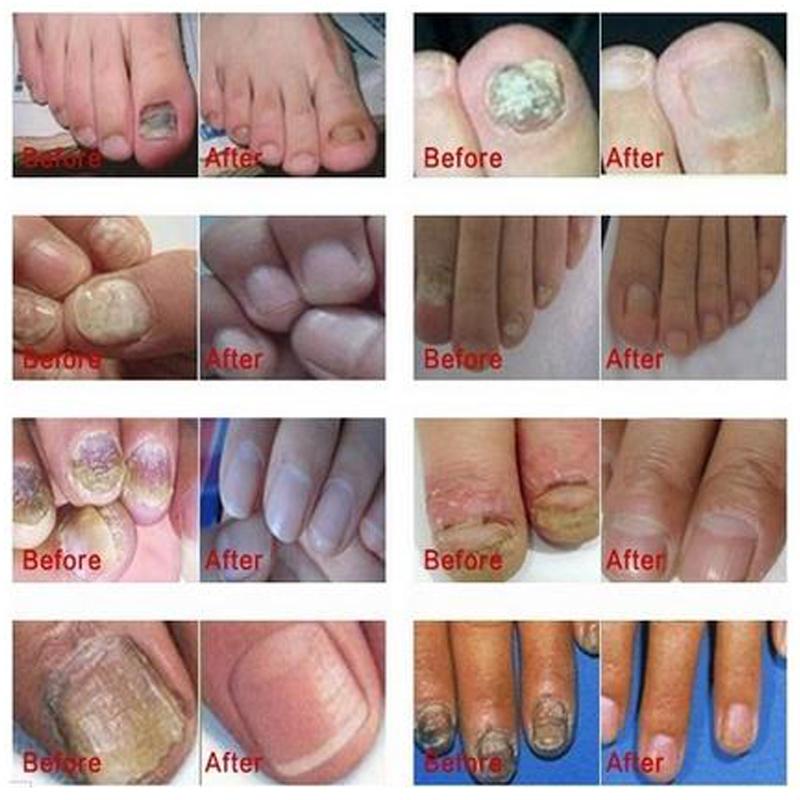 Made in Japan Professional ANTIFUNGAL FUNGAL Nail Treatment Essence Cuticle Oil Toe Nail Fungus Removal Feet Care Nail Gel(China (Mainland))