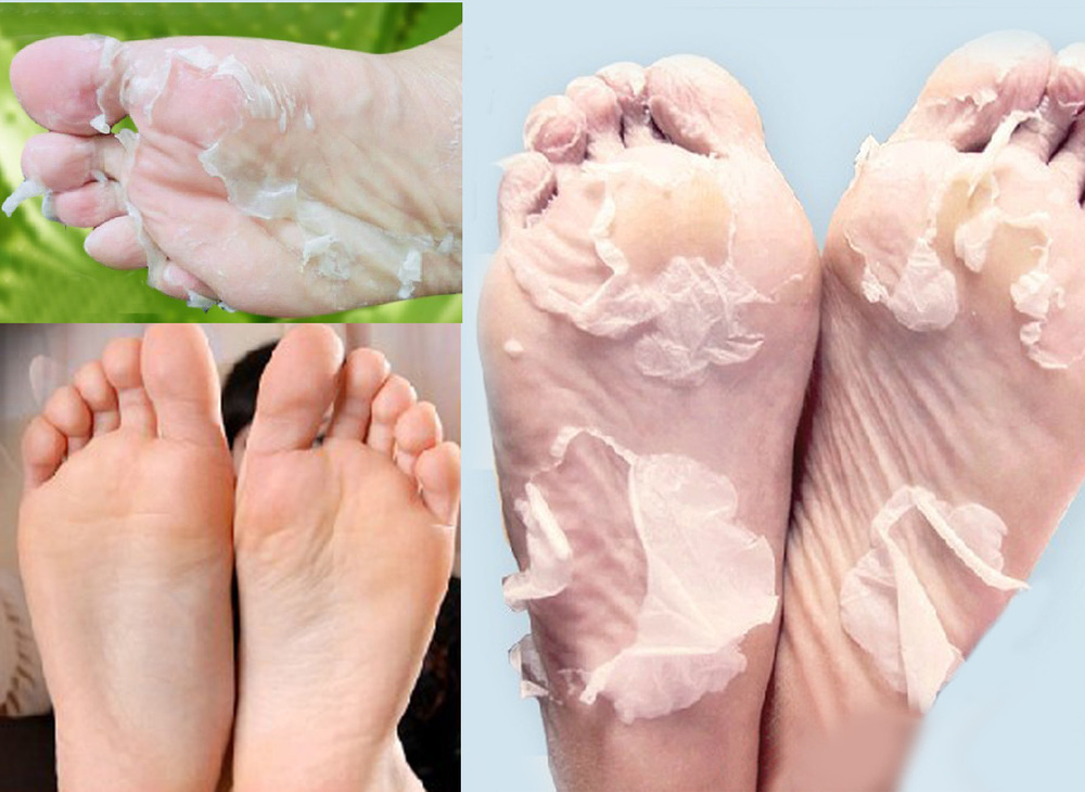 5pair=10pcs Baby Foot Bamboo Vinegar Remove Dead Skin Foot Mask Peeling Pedicure Socks Cuticles For Heel Exfoliation Feet Care(China (Mainland))
