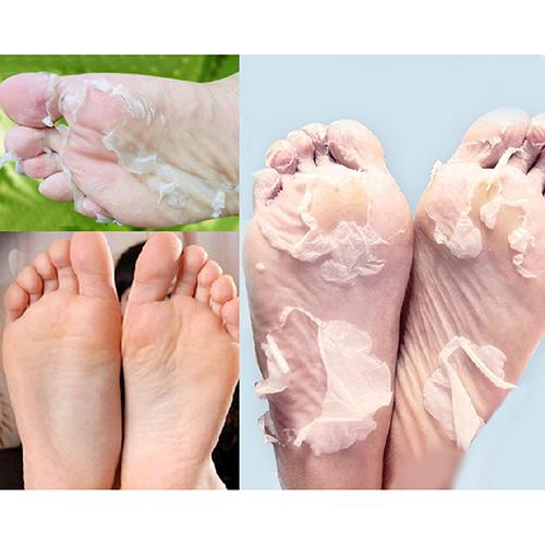 2Pcs Milk Bamboo Vinegar Dead Skin Remove Foot Skin Smooth Exfoliating Feet Mask <br><br>Aliexpress