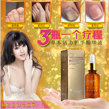 Best Selling, Fungal Nail Treatment Essence Nail and Foot Whitening Toe Nail Fungus Removal Feet Care Nail Gel Free Shipping