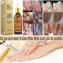 Herbal medicine afy Fungal Nail Treatment Essence Nail and Foot Whitening Toe Nail Fungus Removal Feet Care Nail Gel(China (Mainland))