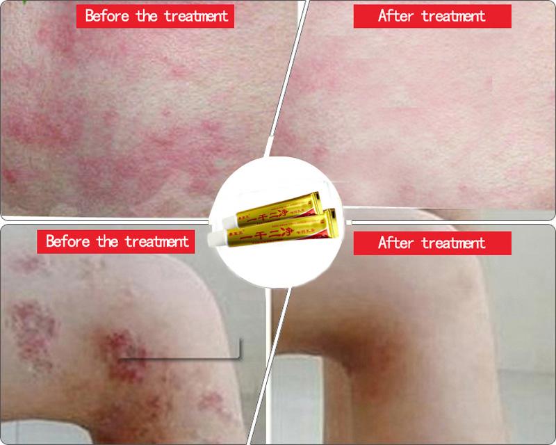 Китайской медицины крем природный монетный двор псориаз экзема мазь крем подходит все кожных заболеваний экзема лечение не имеет побочных эффектов