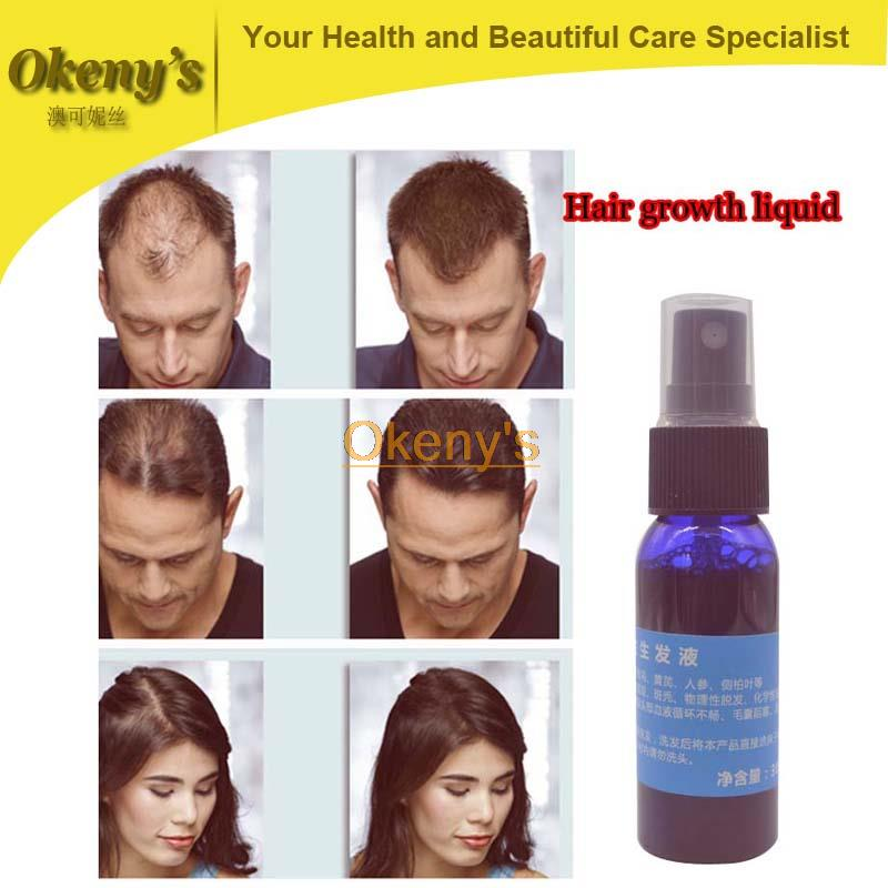 yuda hair growth pilatory, 30 ml bottle for alopecia,fast hair growth products for women and man grow dense chinese recipe(China (Mainland))