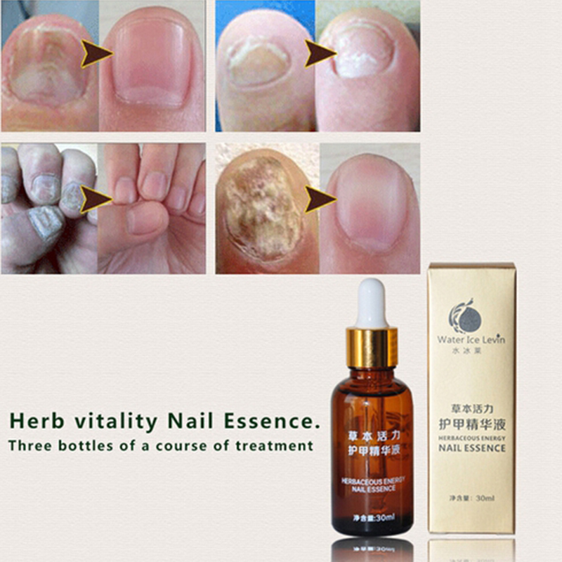 Brand Health Skin Care Herbal Nail Repair Treatment Essential Oil 30ml Onychomycosis Remover Serum Beauty Disinfect