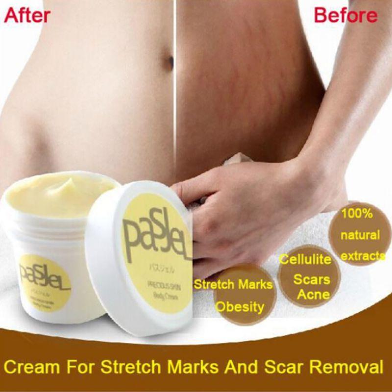 Precious Skin Body Cream Remove Stretch Marks Treatment Postpartum Repair Whitening Pregnancy Scar Removal 50g