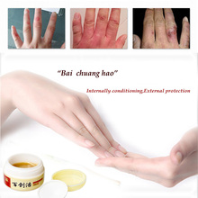 Frostbite cream snake oil hand cream anti-itch cream frostbite frostbite swollen hands and feet(China (Mainland))