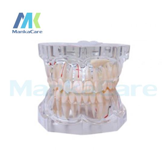 Фотография Manka Care - 2.5 Times Pathology Oral Model Teeth Tooth Model