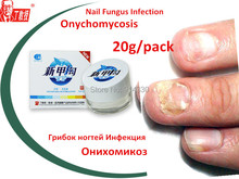 4 Packs Nail treatment /onychomycosis Paronychia / anti fungal nail infection good result