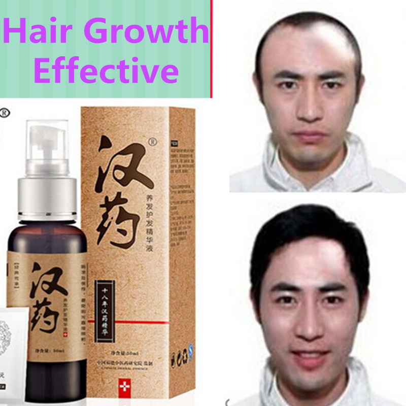 Natural Herb Hair Growth Essence 50MLHair Loss Care Liquid Thick Black Dense Hair Growth Serum Men&Women Hair Care Essential(China (Mainland))