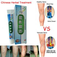 Medical Varicose Veins Treatment Leg Acid Bilges Itching Earthworm Lumps Old Bad Leg Vasculitis Cream Chinese Medicine(China (Mainland))