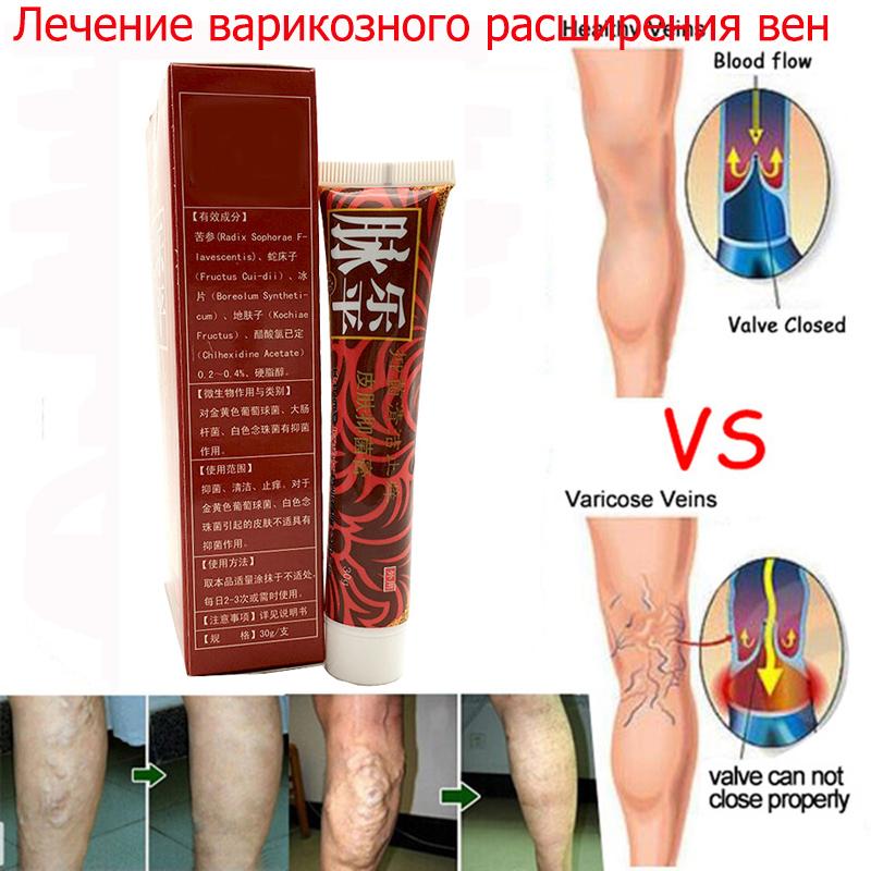Варикоз ног чем лечить в домашних условиях