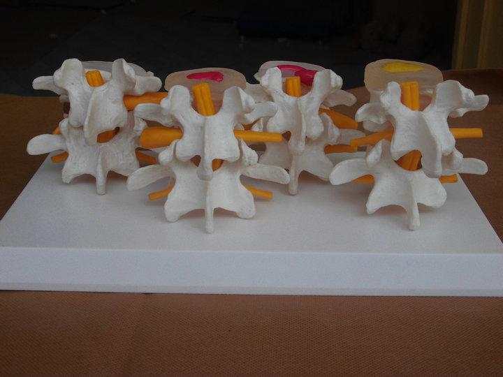 Human skeleton model lumbar disc disease model spine model lumbar bone lesions Model(China (Mainland))