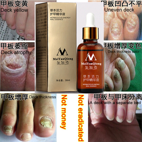 100% Skin Care Fungal Nail Treatment Essence Nail and Foot Whitening Toe Nail Fungus,Profession Removal Feet Care Nail Gel