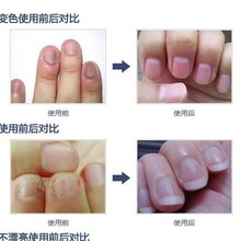 Fungal Nail Treatment TCM Essence Oil Hand and Foot Whitening Toe Nail Fungus Removal Feet Care Nail Polish Tools Nail Gel