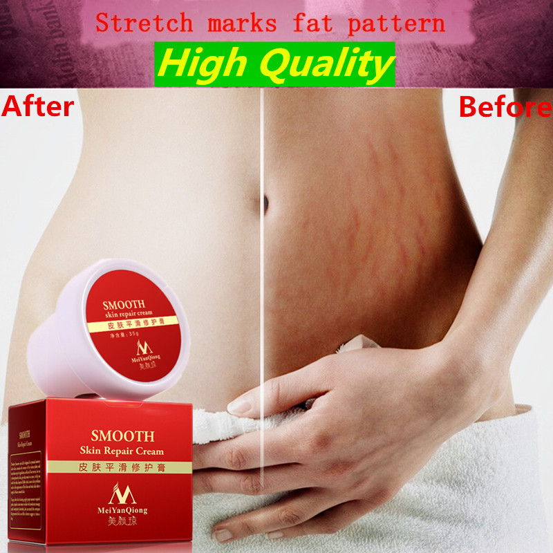 MeiYanQiong Precious Skin Body Cream stretch marks remover and scar removal powerful postpartum obesity pregnancy face cream(China (Mainland))