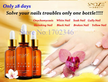 4 PCS/set Fungal Nail Treatment Essence Nail and Foot Whitening Oil for Cuticle Toe Nail Fungus Removal Feet Care Nail Gel