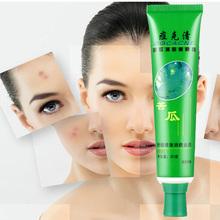 Anti Acne Cream Cosmetic Acne Remove Cream Bitter Gourd Detox Acne Removing fast Acne Peeling Pimples Treatment 30g A/06007