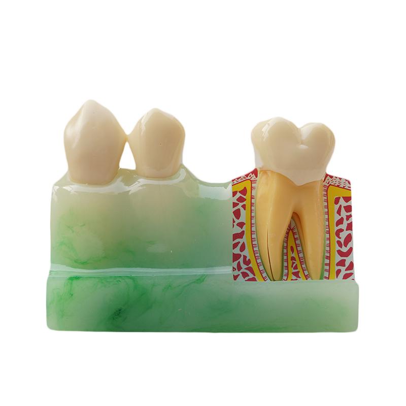 Dental Materials Lab 4 Times Disassembling Productos De Dentista<br><br>Aliexpress