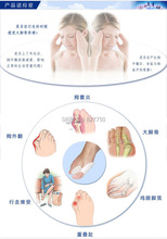 2Pairs 2014 New Hot Sale Beetle crusher Bone Ectropion Toes Outer Appliance Professional Technology Health Care