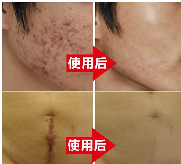 2015 hot sales Nuobisong facial scar removal cremas facial Spots treatment whitening face cream stretch marks moisturizing(China (Mainland))