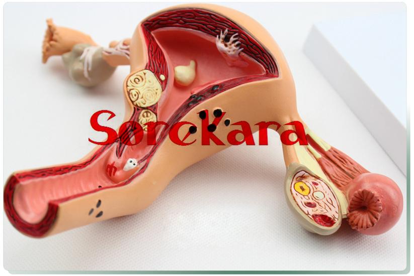 Здесь можно купить  Human Anatomical Uterus Ovary Disease Professional New Medical Teaching Model Professional Dissection For School Hospital  Офисные и Школьные принадлежности