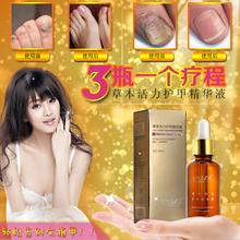 Chinese medicine Fungal Nail Treatment Essence Nail and Foot Whitening Toe Nail Fungus Removal Feet Care