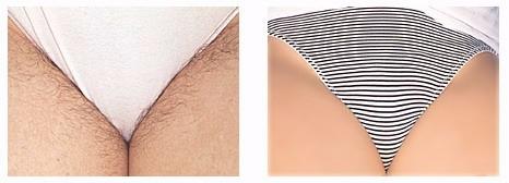 Zona bikini depilazione in UFA