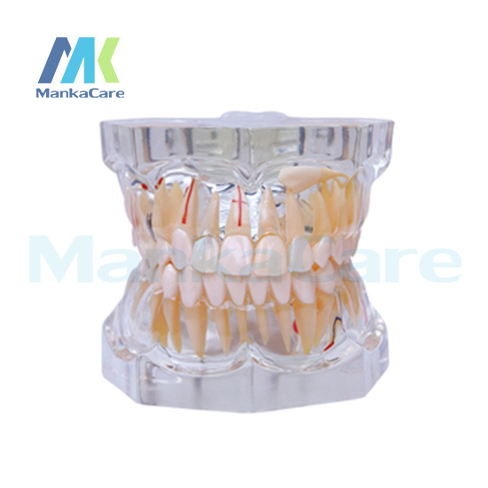 Фотография Manka Care - 2.5 Times Pathology Oral Model Teeth Tooth Model