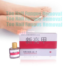 25ml NEW Onychomycosis Nail Special Treatment Antibacterial Toe Nail Fungus Removal Nails Nursing Feet Care Herbal Essence(China (Mainland))
