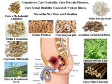 Formula of Curing Prostate Diseases, Solve Mens Problem, Cure Prostatitis, Get a Healthy Prostate in 2 Months, 50 pcs/lot(China (Mainland))
