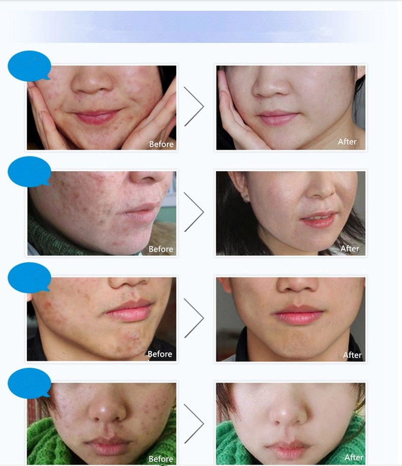 Hot Skin Care Brand BIOAQUA Face Acne Treatment Acne Scars Cream Anti Acne Removal Gel Whitening Moisturizing Cream 30g