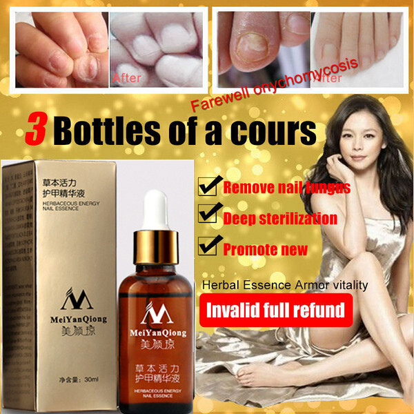 Fungal Nail Treatment Feet Care Essence Nail and Foot Whitening Toe Nail Fungus Removal Nail Gel Free Shipping 1pcs MeiYanQiong