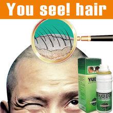 Оригинал алопеция Юда pilatory дополнительной прочности Sunburst рост волос лечение волос Облысение быстро рост волос анти выпадение волос(China (Mainland))