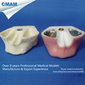CMAM IMPLANT02 Sinus Lift Practice Model Dental Tooth Model for Teathing and Practicing