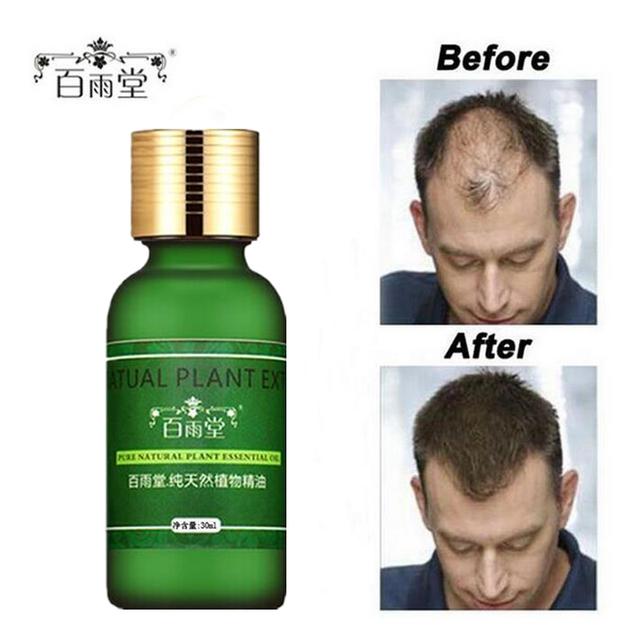 Натуральное масло (сыворотка роста) для стимуляции роста волос на голове.